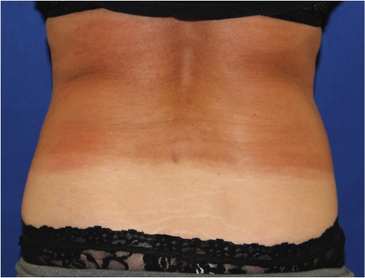CoolSculpting-before-201